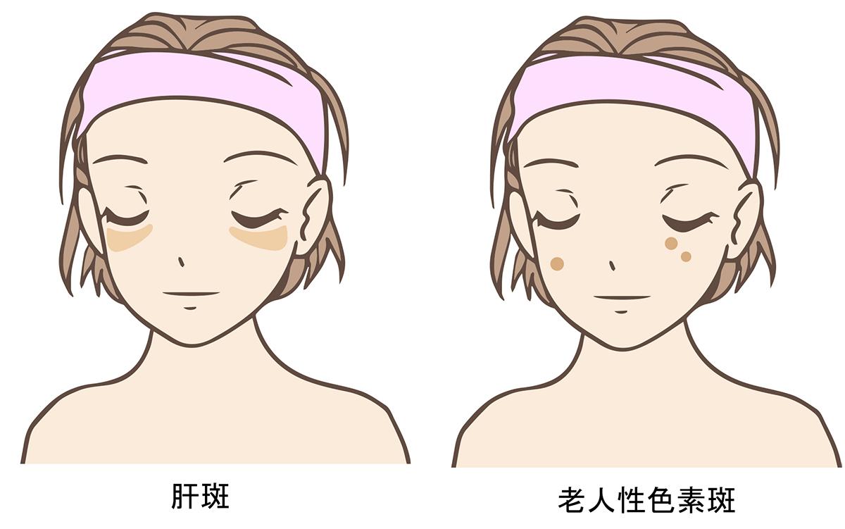 肝斑と老人性色素斑