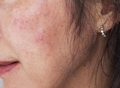 トレチノイン&ハイドロキノン治療中の肌