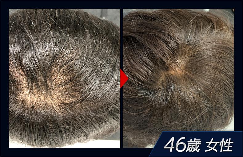 46歳女性 育毛評価試験画像