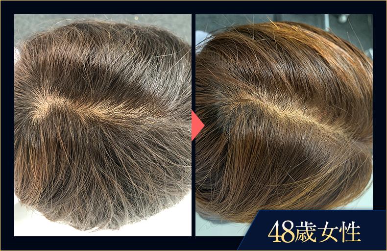 48歳女性 育毛評価試験の画像