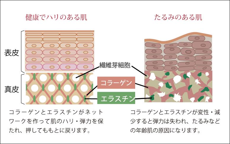 左:若い肌 右:老化した肌