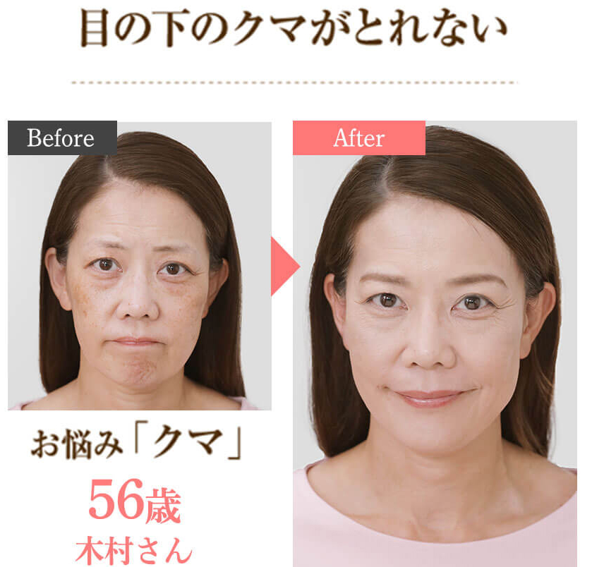 56歳の女性