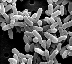 パントエア菌の電子顕微鏡写真(自然免疫応用技研株式会社のサイトより)