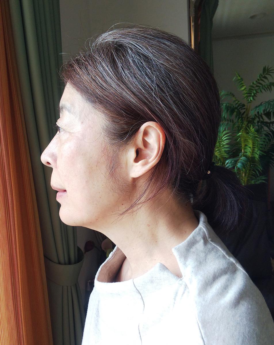 シミと肝斑治療の経過