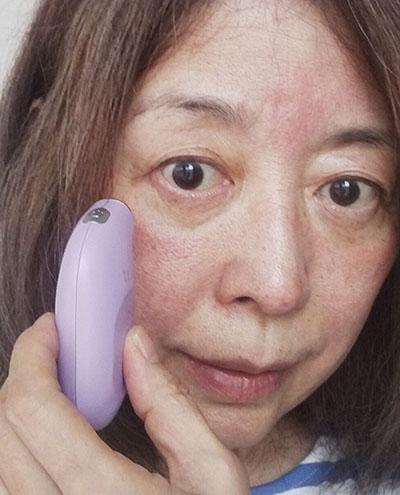 トリア・スキン エイジングアイケアレーザー