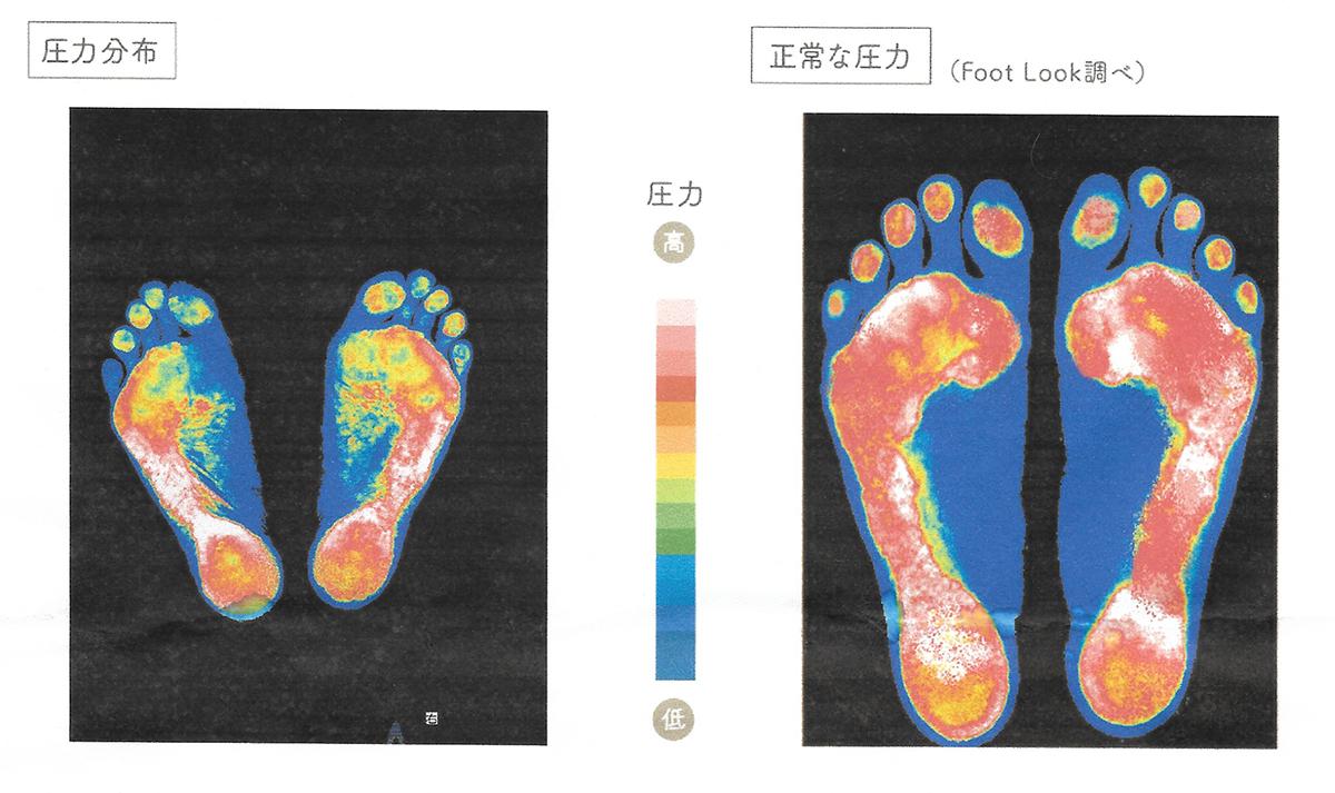 足底の圧力分布