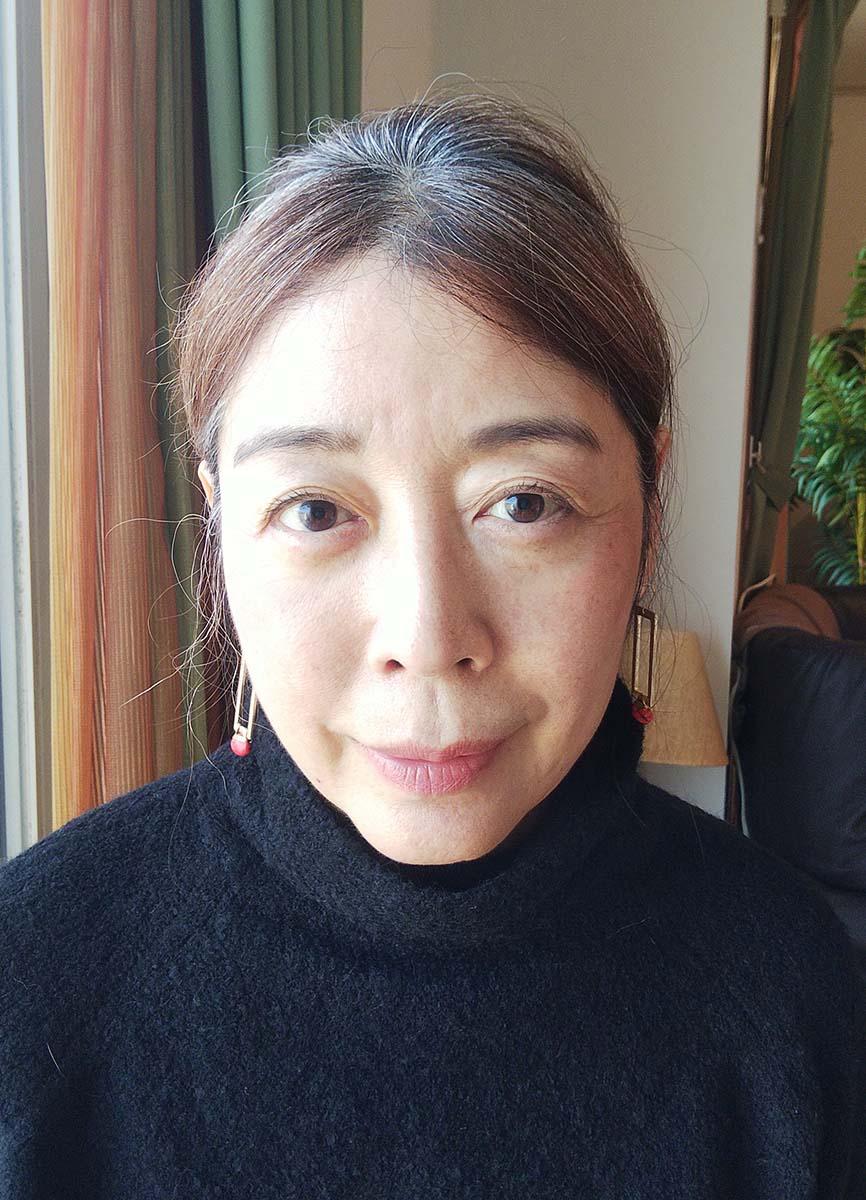 レーザー美顔器を1カ月休止した後の肌