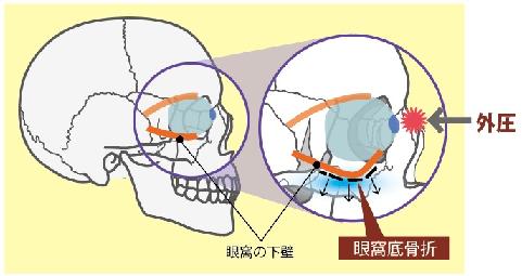 f:id:oyakudachi395:20200209113541p:plain