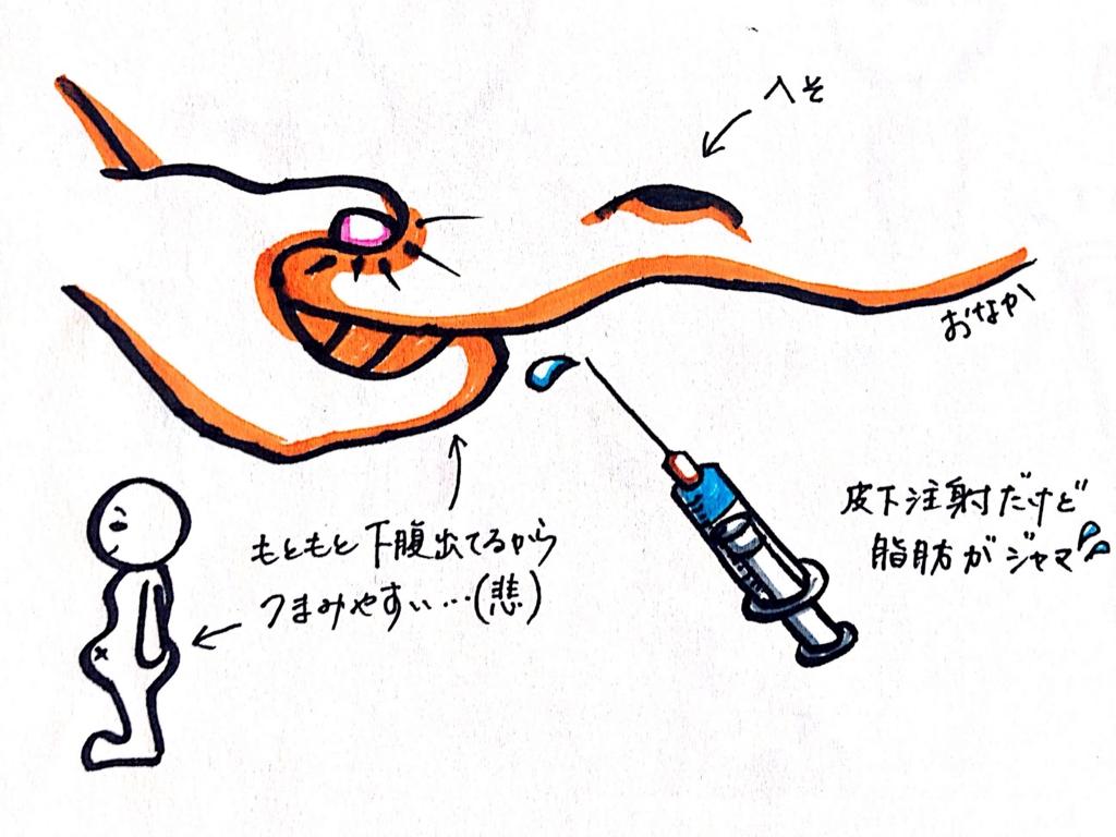 f:id:oyuki194:20160917134413j:plain