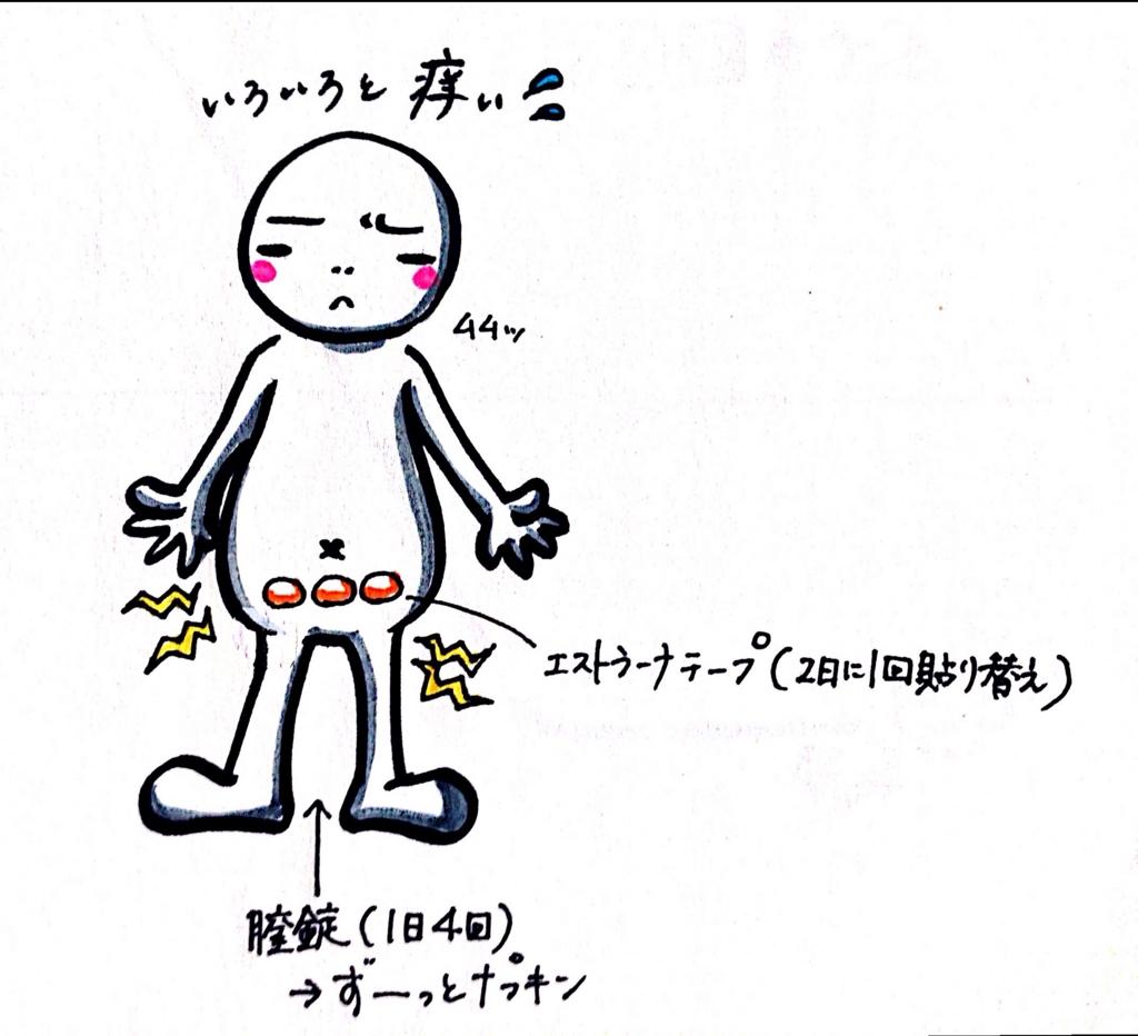 f:id:oyuki194:20160919175017j:plain