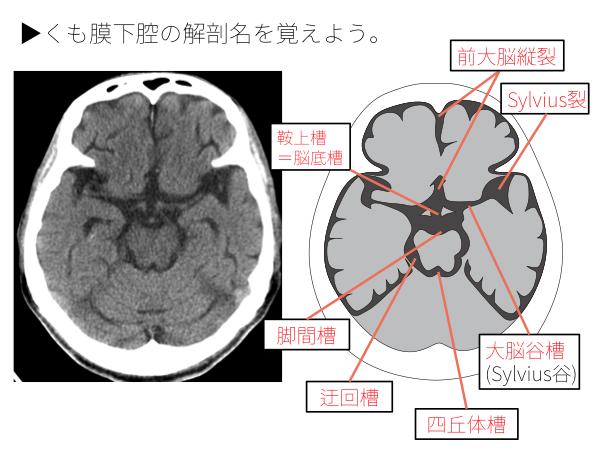 ヘルニア と は 脳