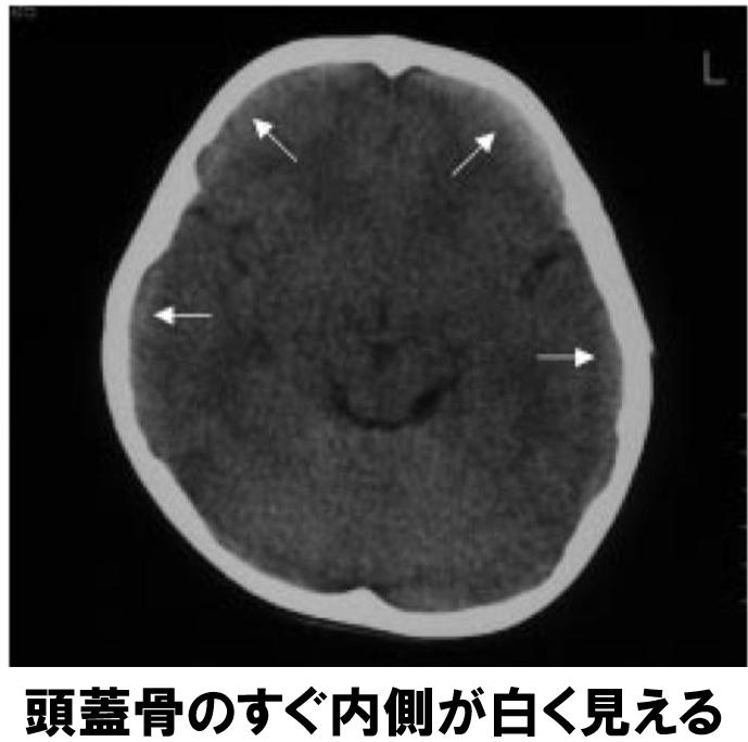f:id:p_kun:20200823162233p:plain