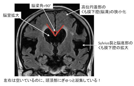 f:id:p_kun:20200823183926p:plain