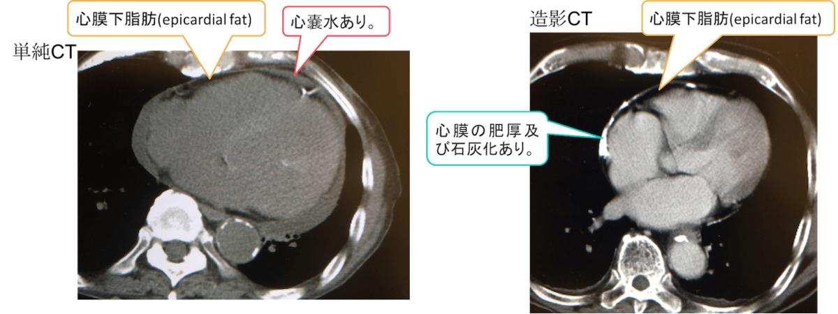 f:id:p_kun:20200831000135p:plain