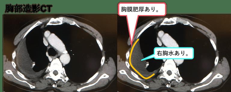 f:id:p_kun:20200831182514p:plain