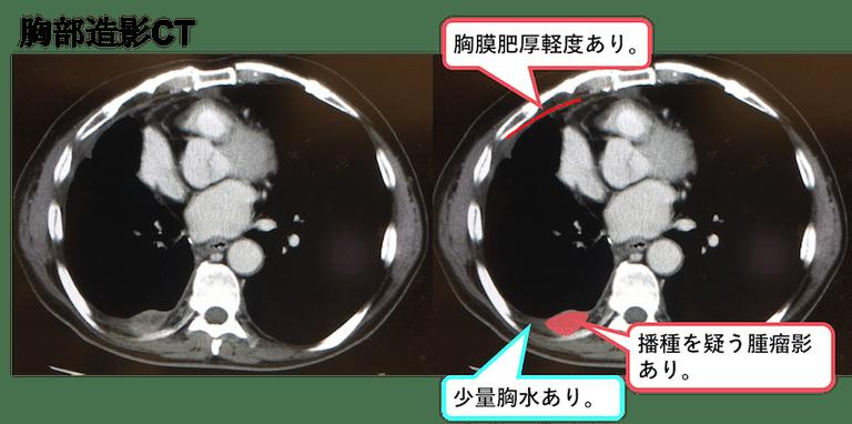 f:id:p_kun:20200831182536p:plain