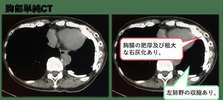 f:id:p_kun:20200831182557p:plain