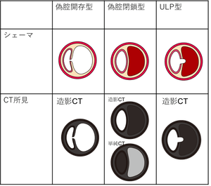 f:id:p_kun:20200831195108p:plain