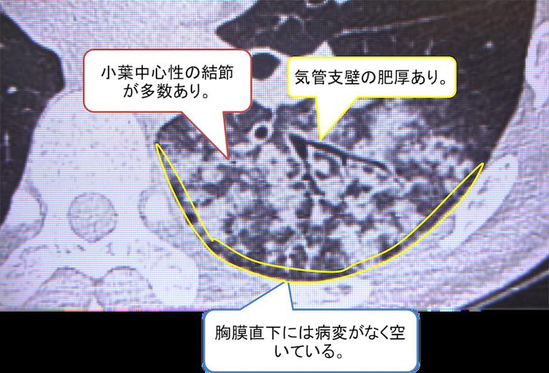 f:id:p_kun:20200903215803p:plain