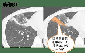 f:id:p_kun:20200904181522p:plain