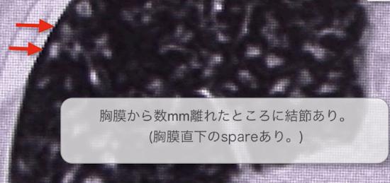f:id:p_kun:20200905165755p:plain