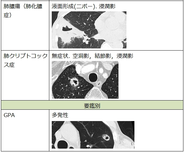f:id:p_kun:20200907225623j:plain