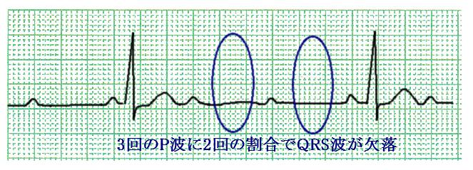 f:id:p_kun:20201018213500p:plain