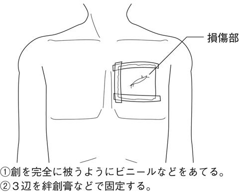 f:id:p_kun:20201105204804j:plain