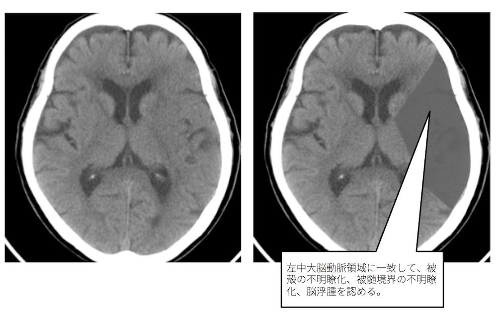 f:id:p_kun:20210213221527p:plain