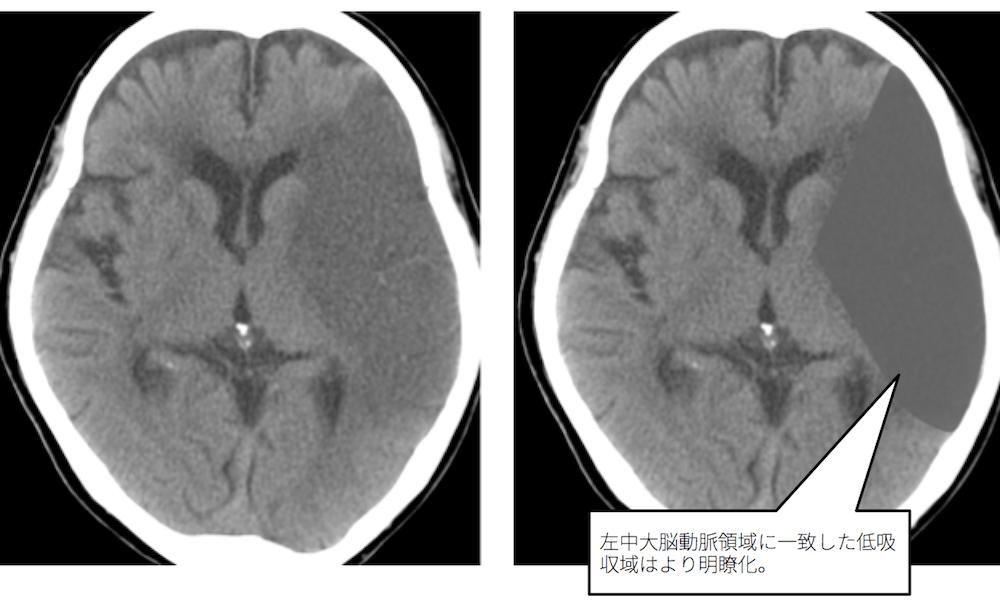 f:id:p_kun:20210213221554p:plain