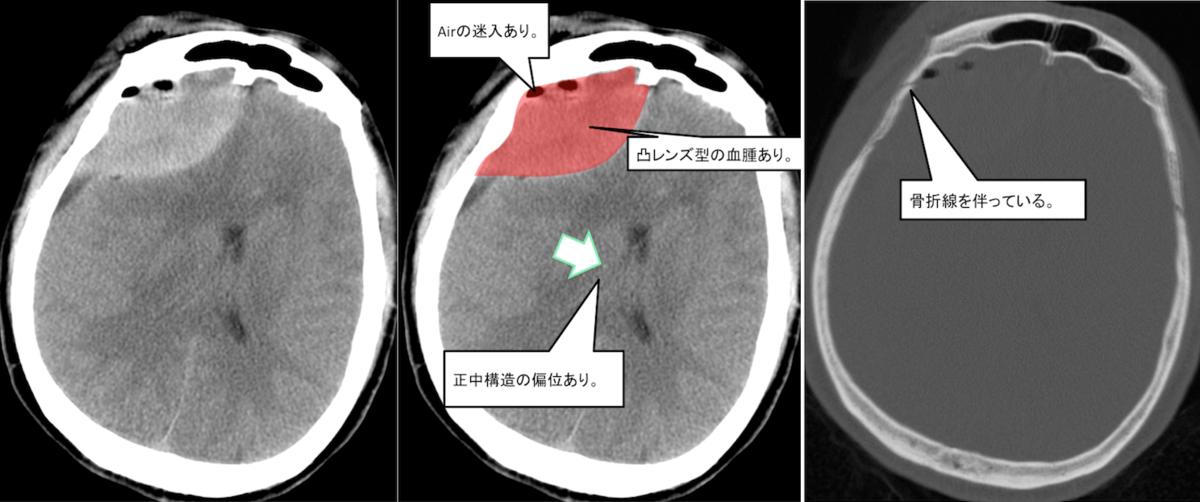 f:id:p_kun:20210223203346p:plain