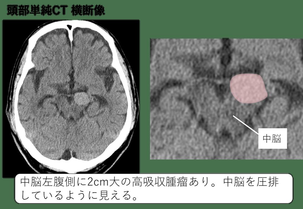 f:id:p_kun:20210224201718p:plain