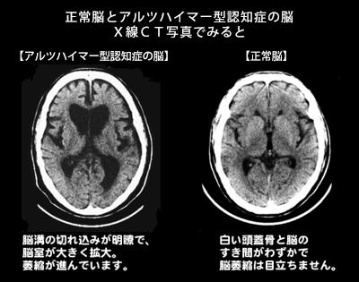 f:id:p_kun:20210225213905p:plain
