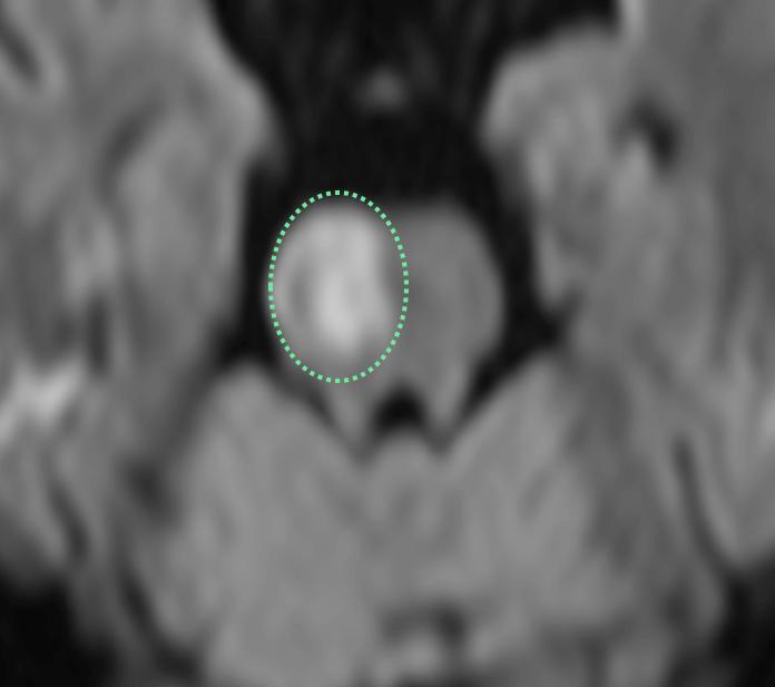 f:id:p_kun:20210308172954p:plain