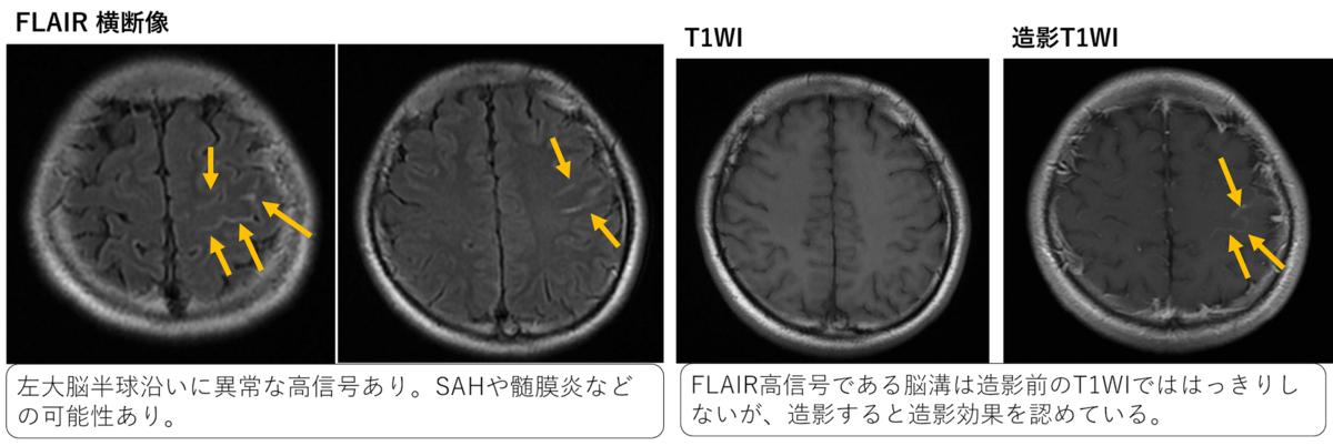 f:id:p_kun:20210426193227p:plain