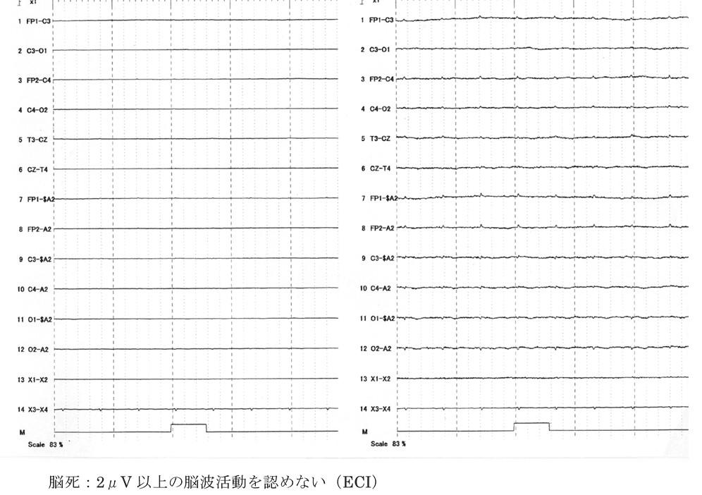f:id:p_kun:20210716203421j:plain
