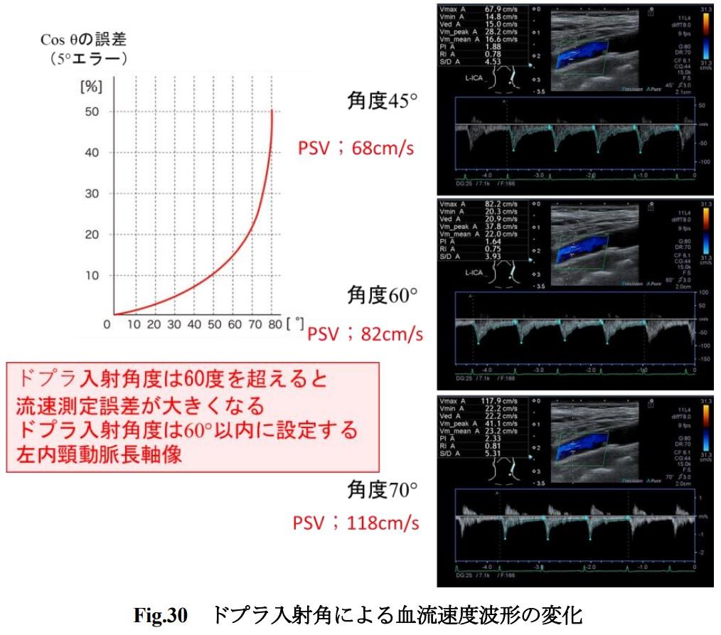 f:id:p_kun:20210914230055j:plain