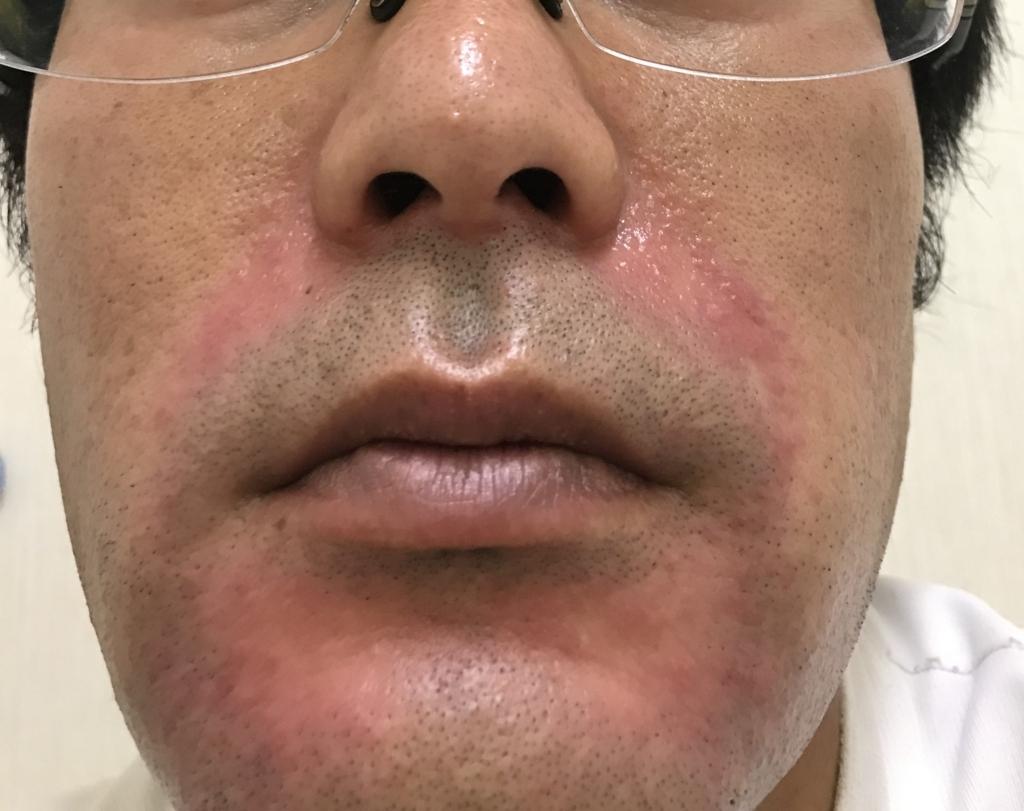 酒 さ 様 皮膚 炎 治療 酒さ様皮膚炎は治る?私が試した治療とスキンケア