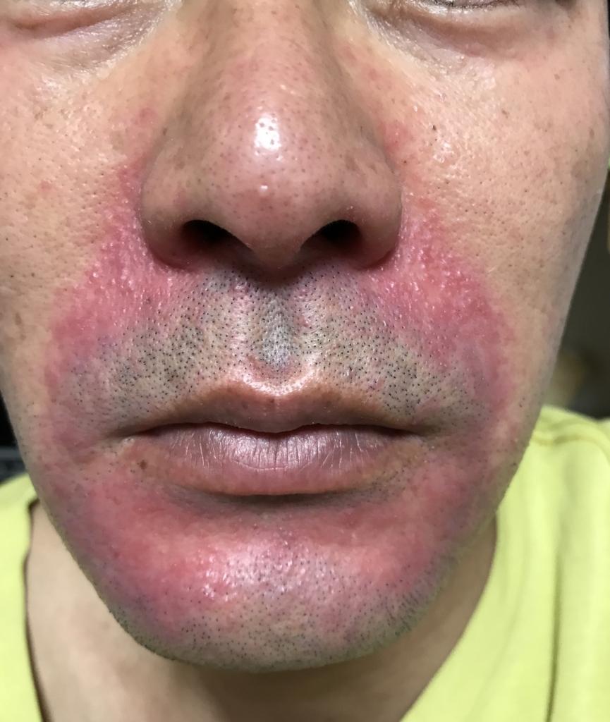 酒 さ 様 皮膚 炎 治療 酒さ、酒さ様皮膚炎の治療法|白崎医院 富山県高岡市の皮膚科専門医