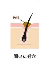 脱毛でニキビ激減。でも脱毛中にニキビができたらテラ・コートリル軟膏a