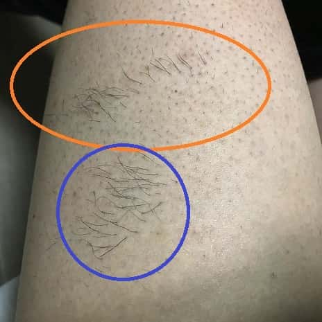 メンズ脱毛の照射漏れの見分け方