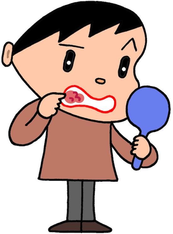 口内炎を点検するイラスト
