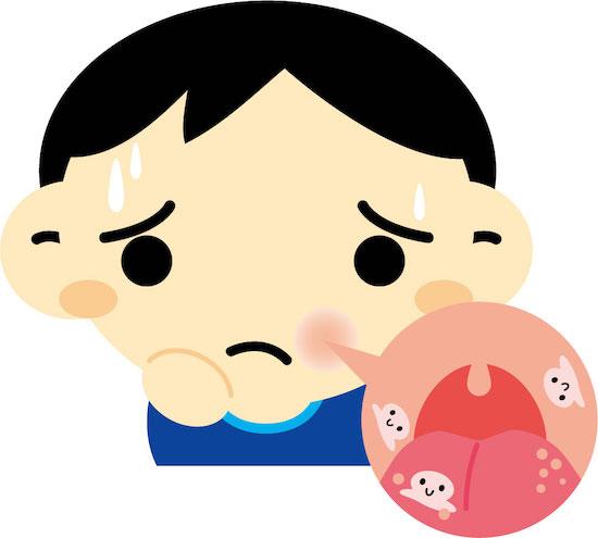 口内炎を痛がる子供のイラスト