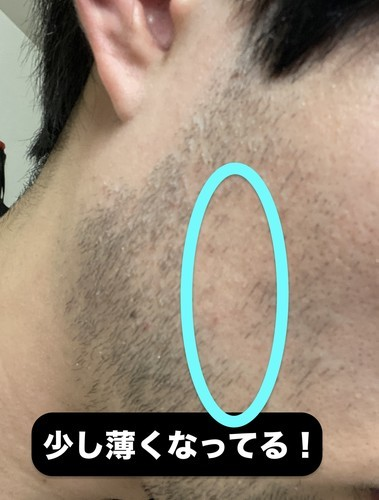 ゴリラクリニック ヒゲ脱毛 効果