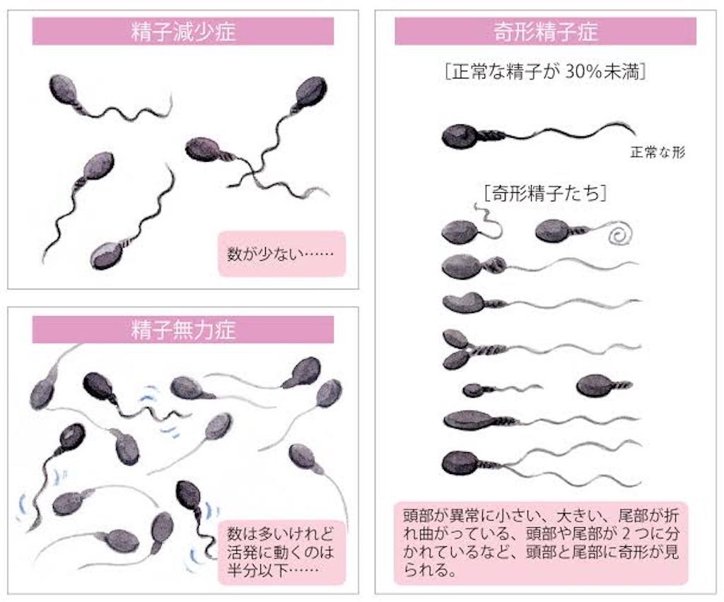検査 適用 精液 保険