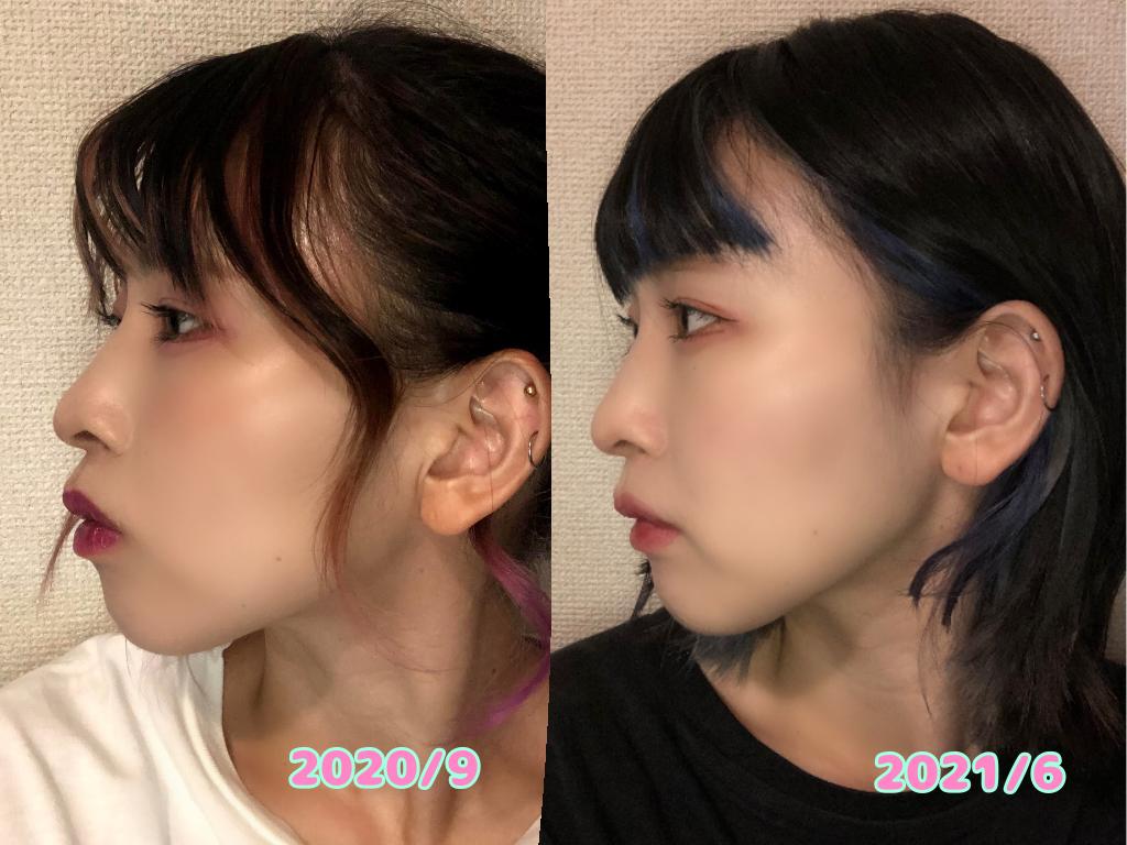 2020年9月と2021年6月の比較