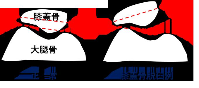 f:id:pojihiguma:20200106061856p:plain