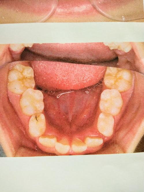 歯科矯正 MRCシステム