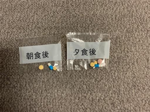 f:id:pokuchan:20211014182117j:plain