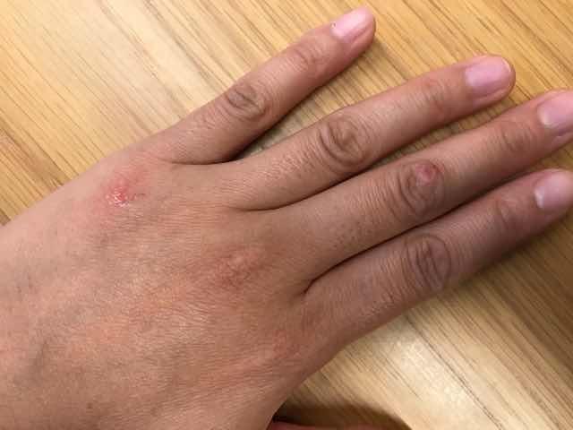 イボがとれた手